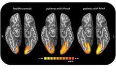 Risonanza Magentica Funzionale Al Cervello Con il Mal Di Testa - Ecco Cosa Succede Risonanza Magentica Funzionale Al Cervello Con il Mal Di Testa - Ecco Cosa Succede Una 'fotog mal di testa risonanza