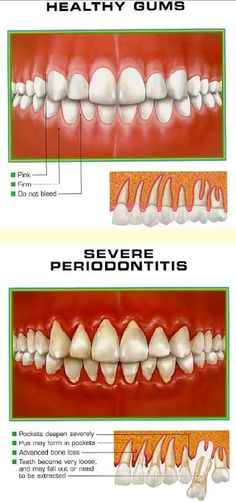 Healthy and Unhealthy gums. Wild Smiles Pediatric Dentistry - pediatric dentist in Jackson, TN @ http://www.wildsmiles.us