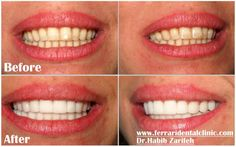 Hollywood smile cost in Lebanon by Elite dentists | Hollywood smile cost worldwide criteria depends on the country of treatment, dentist qualifications, clinic accreditation, and Hollywood smile procedure chosen like veneers, Lumineers, Emax veneers, Da Vinci veneers, composite veneers, teeth whitening, dental implants, zirconium crowns and bridges, gummy smile correction, Laser dentistry… Hollywood smile Lebanon Call us now +96170578444 http://www.Ferraridentalclinic.com