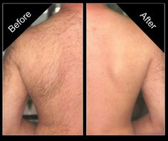 Thinking About Hair Removal? Here's How to Shave Your Back for Men - Thinking About Hair Removal? Heres How to Shave Your Back for Men Informations About Thinking About - Back Hair Removal, Permanent Laser Hair Removal, Hair Removal For Men, Best Hair Removal Products, Hair Removal Methods, Protective Styles, Anti Aging, Laser Hair Removal Treatment, Wet Shaving