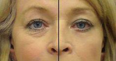 O melhor remédio caseiro contra as rugas ao redor dos olhos - e só leva 2 ingredientes! | Cura pela Natureza