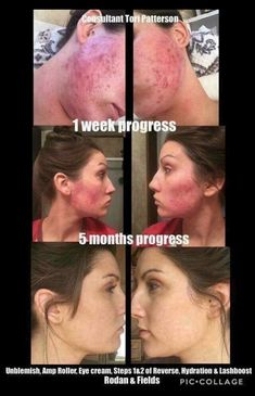 mloveall.myrandf.com Scar Removal Cream, Acne Scar Removal, Pimple Scars, Acne Scars, Philosophy Skin Care, Skin Growths, Beauty Skin, Face Beauty, Sensitive Skin Care
