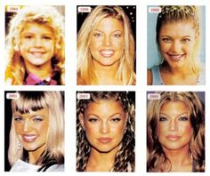 Fergie Plastic Surgery Before And After – www.celeb-surgery… – – Best liposuction Fergie Plastic Surgery Before And After – www.celeb-surgery… – Fergie Plastic Surgery Before And After – www. Extreme Plastic Surgery, Plastic Surgery Pictures, Korean Plastic Surgery, Bad Plastic Surgeries, Celebrity Plastic Surgery, Feminine Face, Eyelid Surgery, Celebrities Before And After, Pregnancy
