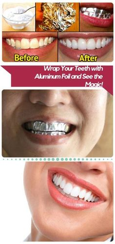 These DIY beauty recipes reveal how you can always look good! Whiten teeth with home remedies – DIY whitening Beauty Secrets, Beauty Hacks, Beauty Advice, Diy Beauté, Teeth Care, Beauty Recipe, Tips Belleza, Homemade Beauty, Teeth Whitening