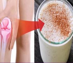 get rid of back pain Natural Honey, Natural Cures, Hip Arthritis Exercises, Ligaments And Tendons, Vitamin Deficiency, Chaat Recipe, Bone Density, Healthy Living Tips, Back Pain