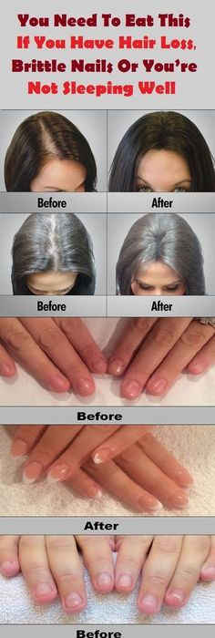 The Adrenal Glands Can Affect The State Of Your Hair Nails And