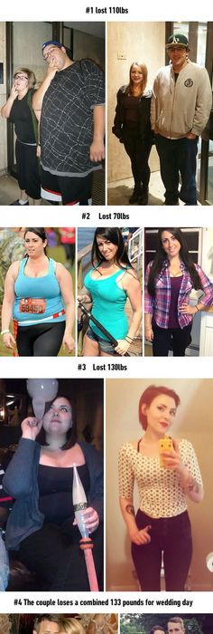 Can you lose weight fast without surgery image 5