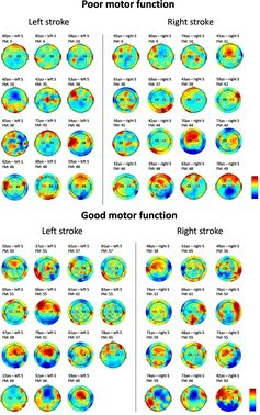 [PINTEREST Board] transcranial Direct Current Stimulation (tDCS), Transcranial Magnetic Stimulation (TMS)