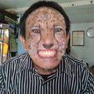 Achmad Suyanto