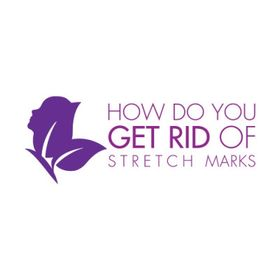 How do you get rid of stretch marks