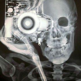 X-Ray OdraciR