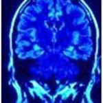 Associated Neurologists, P.C.