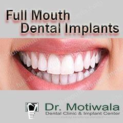 fullmouth dentalimplants