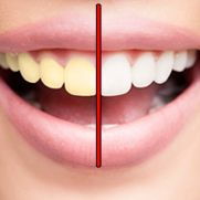Zap Yellow Teeth
