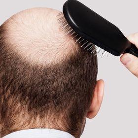 Hair Loss Remedy