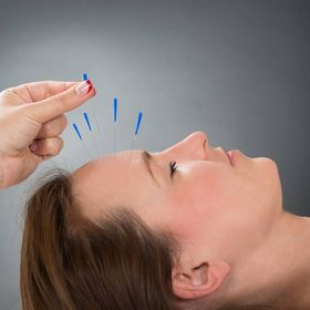 Women Acupuncture and Traditional Chinese Medicine