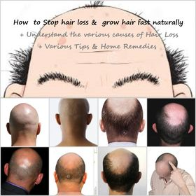 Stop hair loss grow hair fast