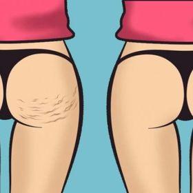 Get Rid of Cellulites