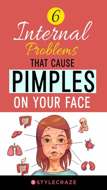 6 Internal Problems The Pimples On Your Face Scream