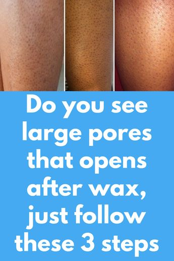 Do you see large pores that opens after wax, just follow these 3 steps