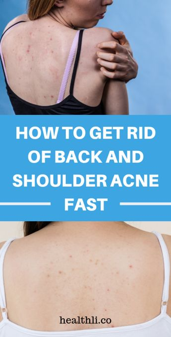 How To Get Rid Of Back Acne Naturally !!!