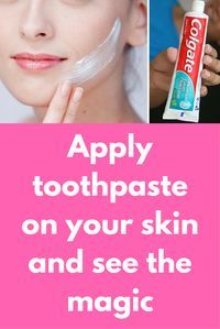 Apply toothpaste on your skin and see the magic