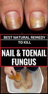 Because of humidity and bacteria, fungal infections can appear, being very painful most of the time. The first signs of bacteria are the appearance of some white or yellow spots at the top of the nail. In time, this condition will lead to nail deformation and to its color change. This situation will become very …