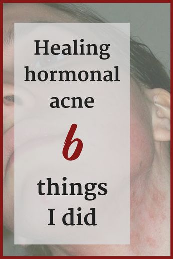 I beat hormonal acne: My 6 powerful little secrets