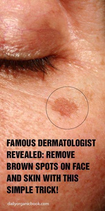 Famous Dermatologist Revealed: Remove Brown Spots On Face And Skin...