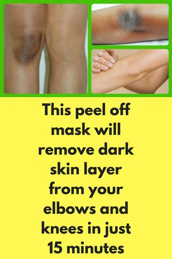 This peel off mask will remove dark skin layer from your elbows and knees in just 15 minutes
