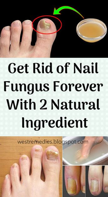 Get Rid of Nail Fungus Forever With 2 Natural Ingredient