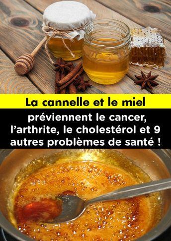 La cannelle et le miel préviennent le cancer, l'arthrite, le cholestérol et 9 autres problèmes de santé !