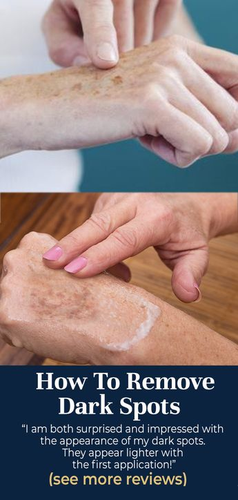 Here's a Great Solution Recommended by Beauty Experts to clear up dark spots, age spots & sun spots.