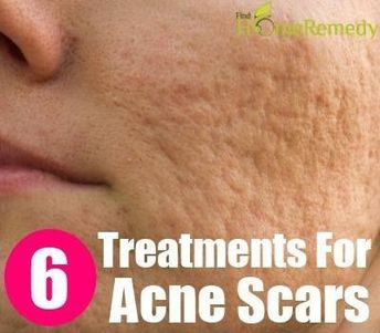 Scar Removing Natural Treatments For Acne Scars :: Click the link to read more.... #acnescarshoney