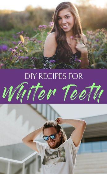 6 DIY Recipes for Whiter Teeth