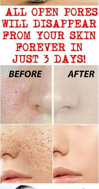 Open pores on face - ALL OPEN PORES WILL DISAPPEAR FROM YOUR SKIN FOREVER IN JUST 3 DAYS