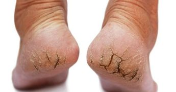 11 Of The Best Home Remedies For Dry Feet And Cracked Heels