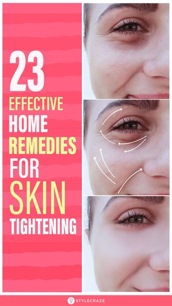 23 Effective Home Remedies To Treat Skin Tightening