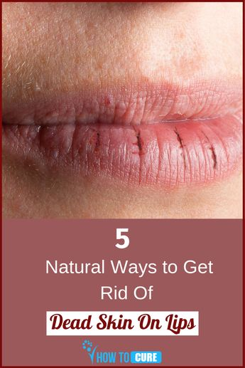 5 Excellent Natural Remedies for How to Get Dead Skin Off Lips