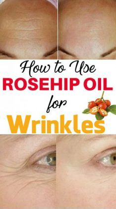 How to Use Rosehip Oil for Wrinkles & Eye Wrinkles – 5 Methods – Page 8