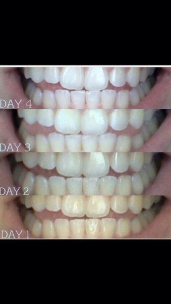 Get Whiter Teeth 😁