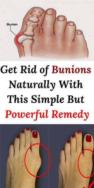 Get Rid of Bunions Naturally With This Simple But Powerful Remedy: Bunions are actually salt deposits. Their formation is triggered by influenza, tonsillitis, gout, poor metabolism, improper nutrition, rheumatic infection and […]