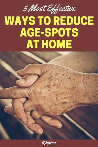 5 Most Effective Ways to Cure Age Spots at home