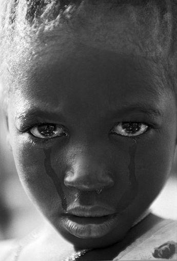 Mutilando sueños - Ami Vitale  Awa Balde (5 años) tras la ablación genital. Foto © Ami Vitale, Guinea Bissau 2000