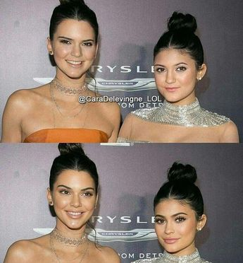 Kendall & Kylie Jenner plastic Surgery
