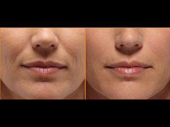 List of Pinterest frown lines around mouth how to get rid