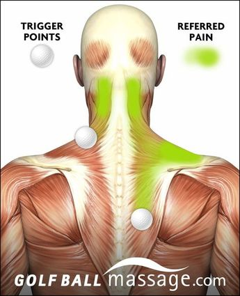 Trigger Points causing referred pain in Neck and Upper/Mid Back
