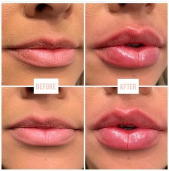 Lips by @lina_sev_ 1 Full Syringe of Juvederm Ultra XC Currently Taking appointm