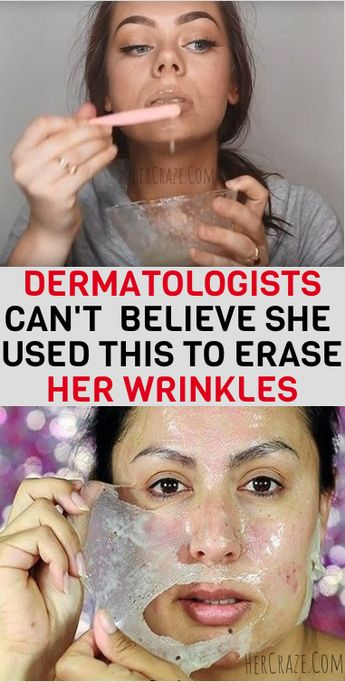 How To Erase Your WRINKLES ! (Dermatologists can't believe