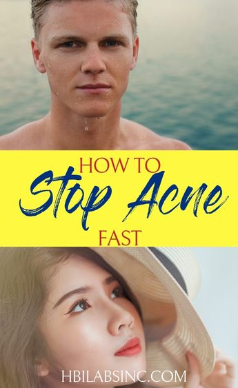 6 Ways to Stop Acne Fast Once and For All